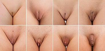 Ausprägung der Klitorisvorhaut.jpg