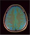 Brain MRI 293 05.png