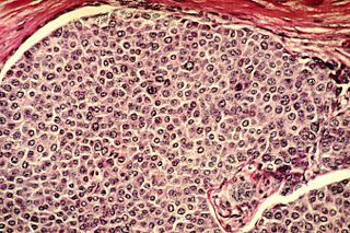 Cancer cell Tumor cell