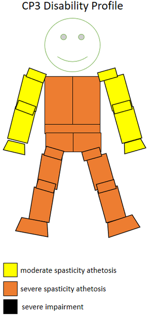 T33 (classification) - The spasticity athetosis level and location of a CP3 sportsperson.