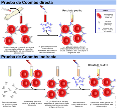 Esquemático mostrando las pruebas de Coombs directa e indirecta.