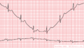 De-BaselineDrift (CardioNetworks ECGpedia).png