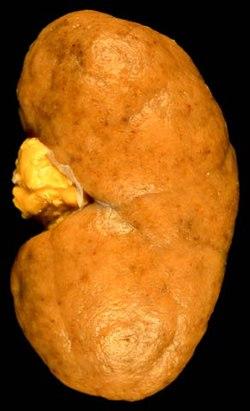 Diffuse proliferative lupus nephritis.jpg
