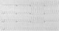 Electrocardiogram of Ventricular Tachycardia.png