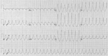 Tachycardia - Wikipedia