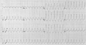 Myocardial infarction complications - A 12 lead electrocardiogram showing ventricular tachycardia.