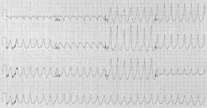 A 12 lead electrocardiogram showing ventricular tachycardia.