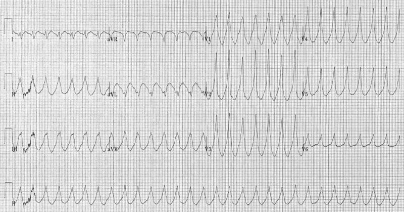 Image:Electrocardiogram of Ventricular Tachycardia.png