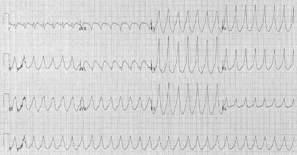 Electrocardiogram of Ventricular Tachycardia