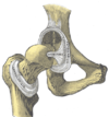 Intracapsular ligament. Left hip joint from within pelvis with acetabular floor removed (left); right hip joint with capsule removed, anterior aspect (right).
