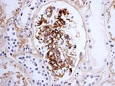 IgA nefropatie při Henochove-Schönleinove purpure