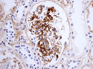 Immunostaining for IgA in a patient with Henoc...