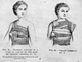 Lister, Breast dressings...,Cheyne, Antiseptic Surgery. Wellcome M0007809.jpg