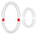 Mandibular third molars01-01-06.png