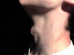 Adam's apple - An example of male laryngeal prominence.