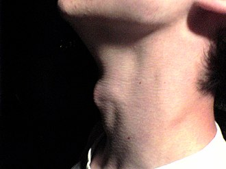 Adam's apple - An example of male laryngeal prominence