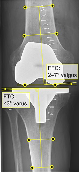 Knee replacement - Wikipedia