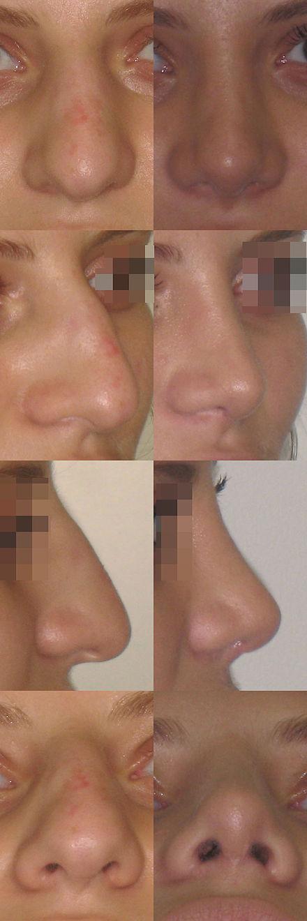 Отекший нос после ринопластики фото