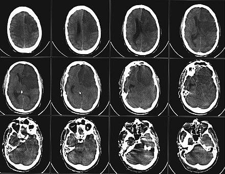 schwere cerebrale makroangiopathie