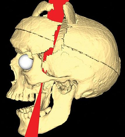 File:Simulated Connectivity Damage of Phineas Gage vanHorn ProbablePaths.jpg