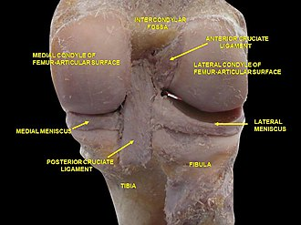 Intercondylar fossa of femur - Image: Slide 3dada