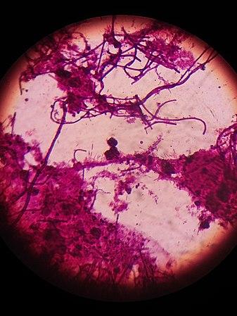File:Нитчасті бактерії 02.jpg