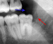 xray of pericoronitis