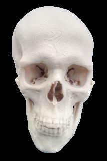 3DPrinted skull 20151124090811