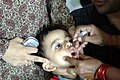 A child is being administered the Polio Vaccination at a centre in New Delhi,. The Government has intensified Polio Immunization Programme across the country as some cases of polio identified at places.jpg