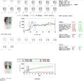 AnalysesOfAMAG3Renogram.png