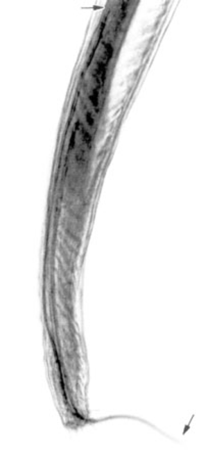 Angiostrongylus cantonensis - Tail of adult male of A. cantonensis, showing copulatory bursa and long spicules (arrows), scale bar is 85 µm