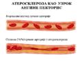Ateroskleroza koronarke.PNG