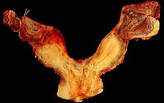 Bicornuate uterus Medical condition
