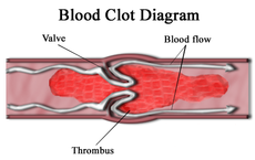Thrombus wikipedia the free encyclopedia for Aortic mural thrombus treatment