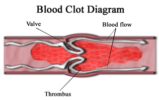 Thrombus blood clot