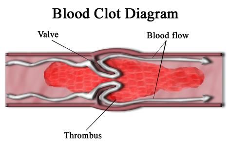 Blood clot diagram
