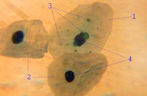 Epithelium - Epithelial cell infected with Chlamydia pneumoniae