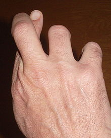 Photo of hand with index finger and second finger crossed at the first joint.