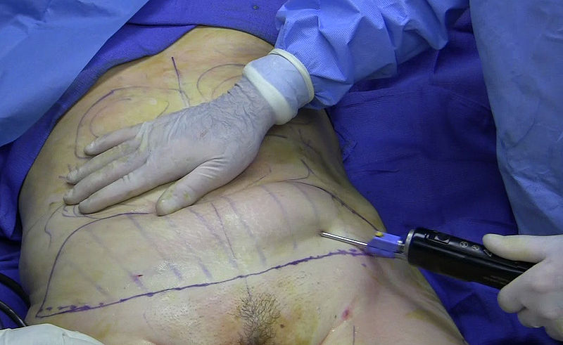 woman undergoing liposuction