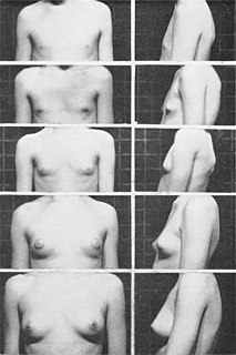 Thelarche The beginning of development of the breasts in the female.