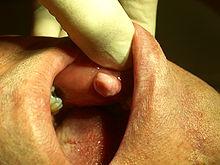 Intimbereich fibrome Fibrom entfernen