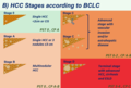 HCC stages according to BCLC.png