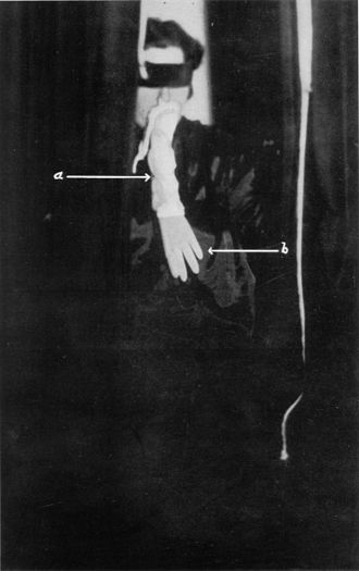 Ectoplasm (paranormal) - Helen Duncan with supposed ectoplasm, analysed by Harry Price to be made of cheesecloth and a rubber glove