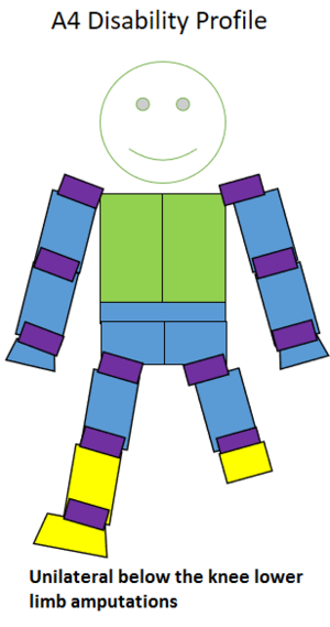 A4 (classification) - Type of amputation for an A4 classified sportsperson.