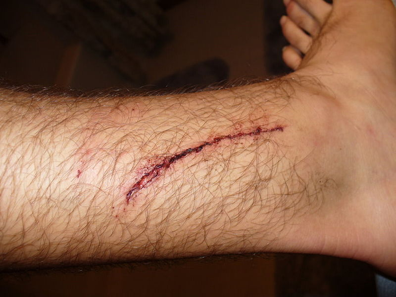 File:Laceration, leg.jpg
