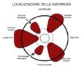 LocalizzazioneEmorroidi.png