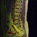 Lumbosacral MRI case 11 10.jpg