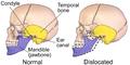 Mandible (Normal vs Dislocated).png
