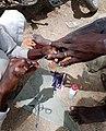 Matériels de la santé des ongles à Maroua.jpg