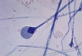 Mature sporangium of a Mucor sp. fungus.jpg